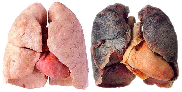 uploads lung lung PNG38 3